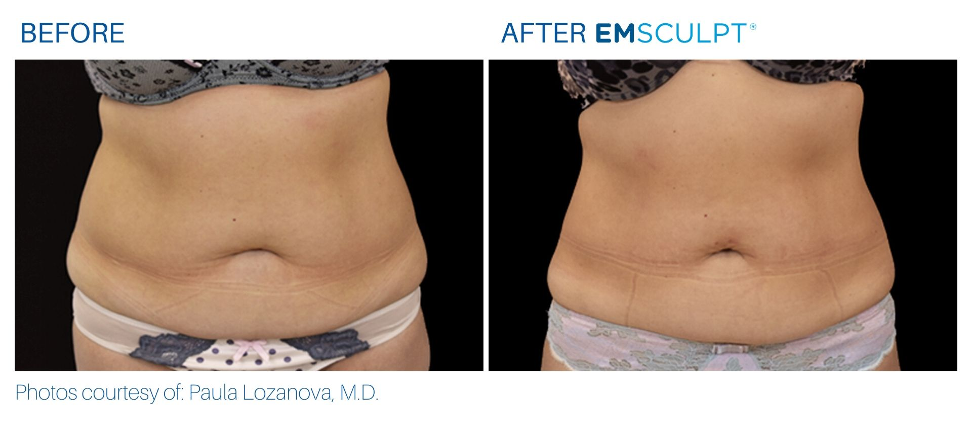 Emsculpt treatment before and after result in Robbinsville, NJ