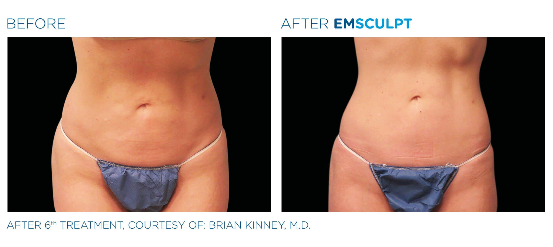 Emsculpt treatment before and after result Aura Dermatology in Robbinsville, NJ