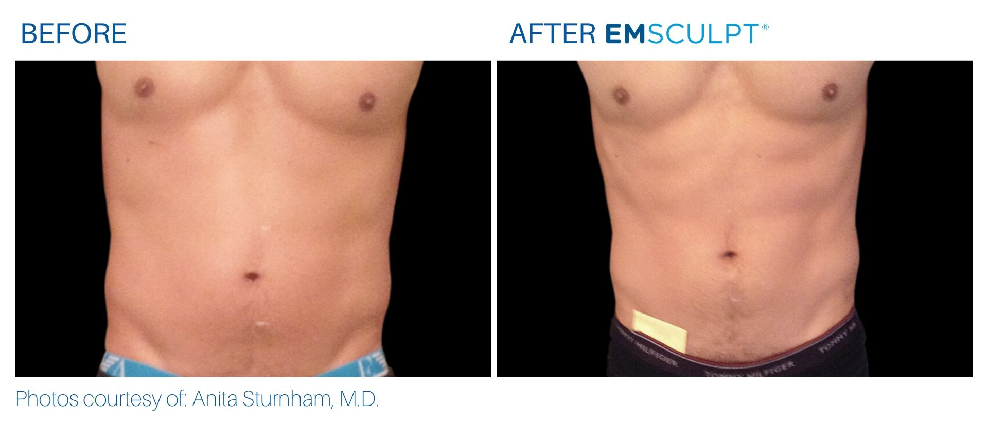 Emsculpt build muscles before and after result Aura Dermatology in Robbinsville, NJ