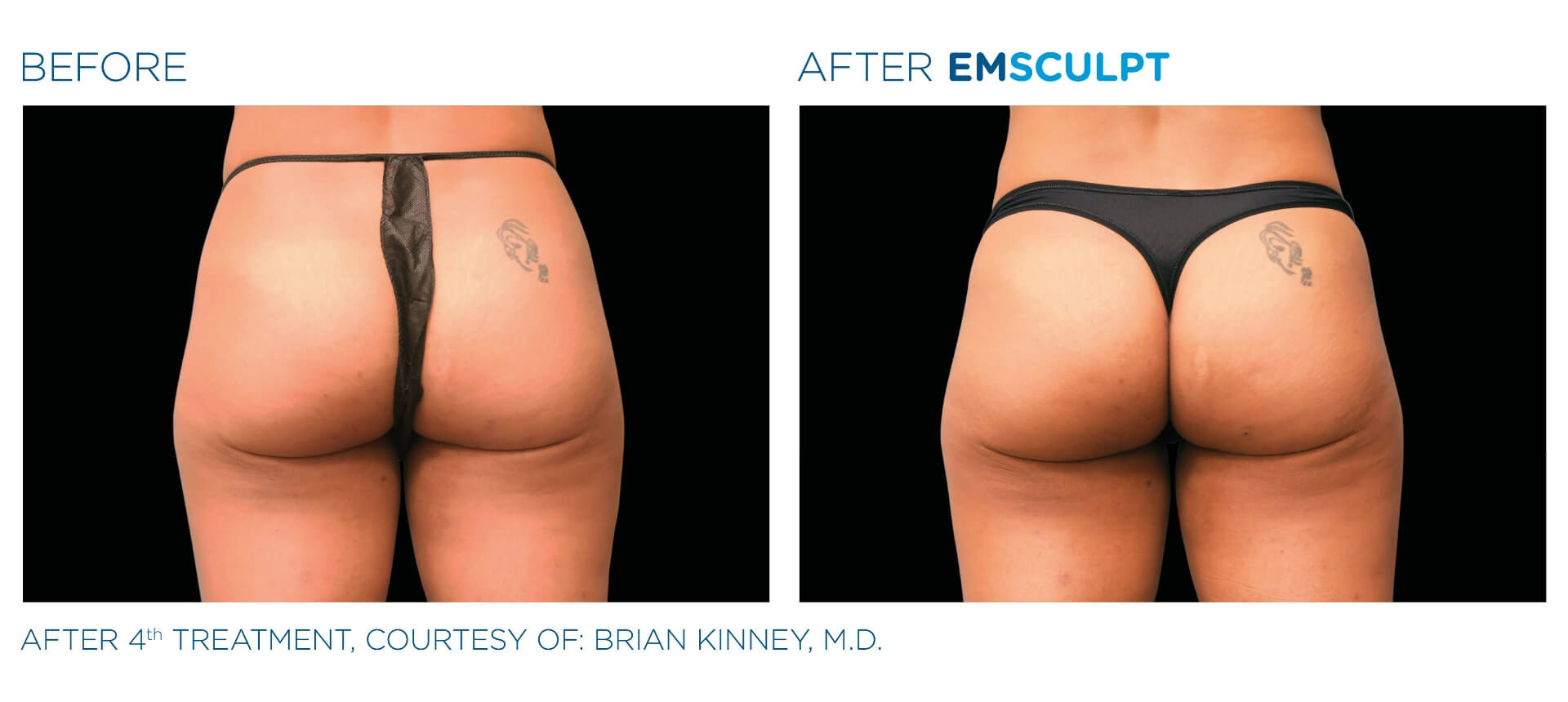 Emsculpt buttocks before and after result Aura Dermatology in Robbinsville, NJ