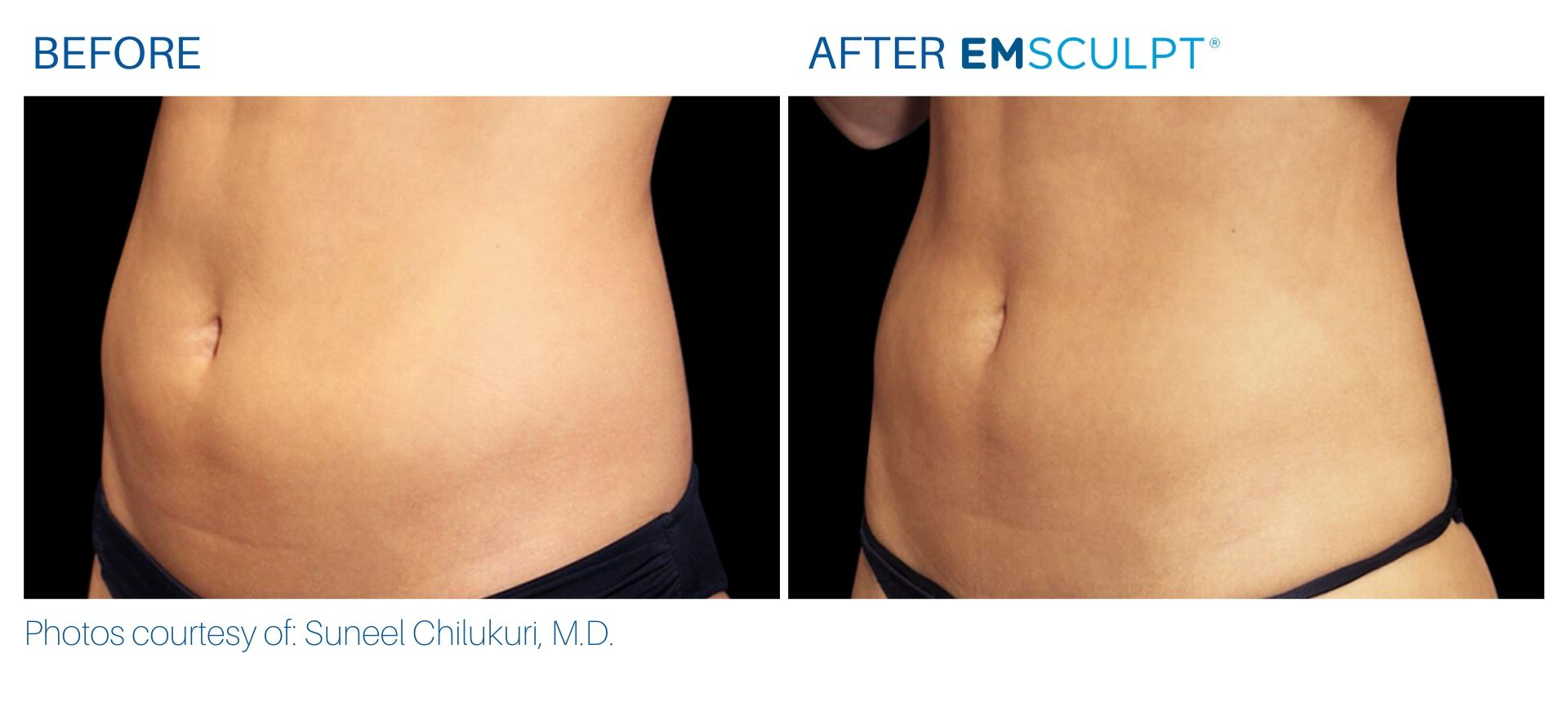 Emsculpt Before and After result Aura Dermatology