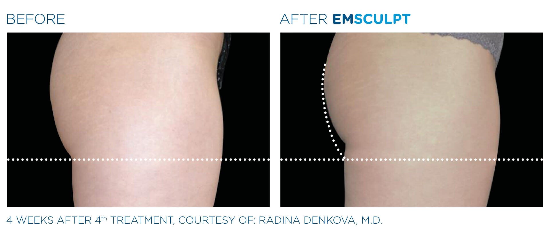 Emsculpt Before and After Aura Dermatology Princeton, NJ