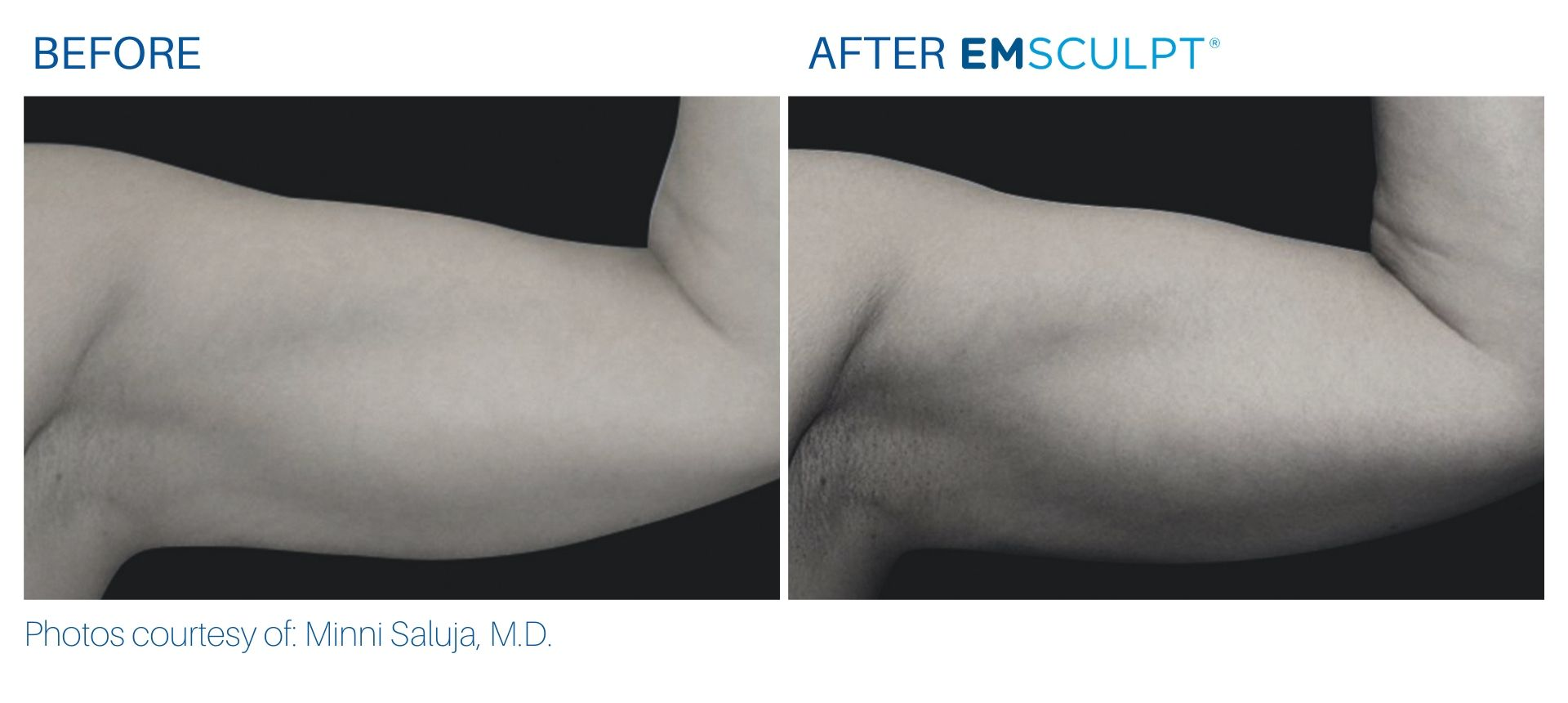 Emsculpt Before and After Arms Aura Dermatology Hamilton, NJ