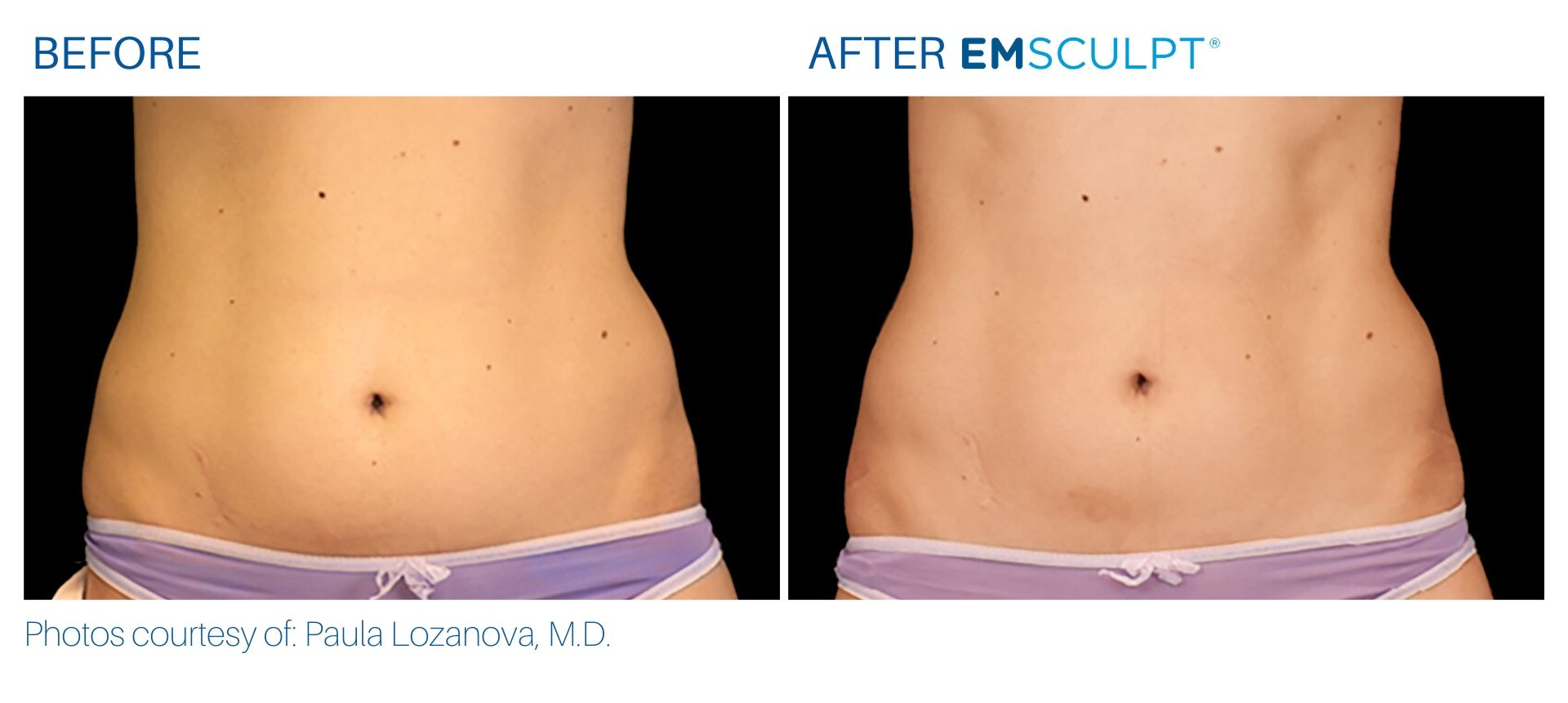 Emsculpt Before and After result Robbinsville & Somerset, NJ