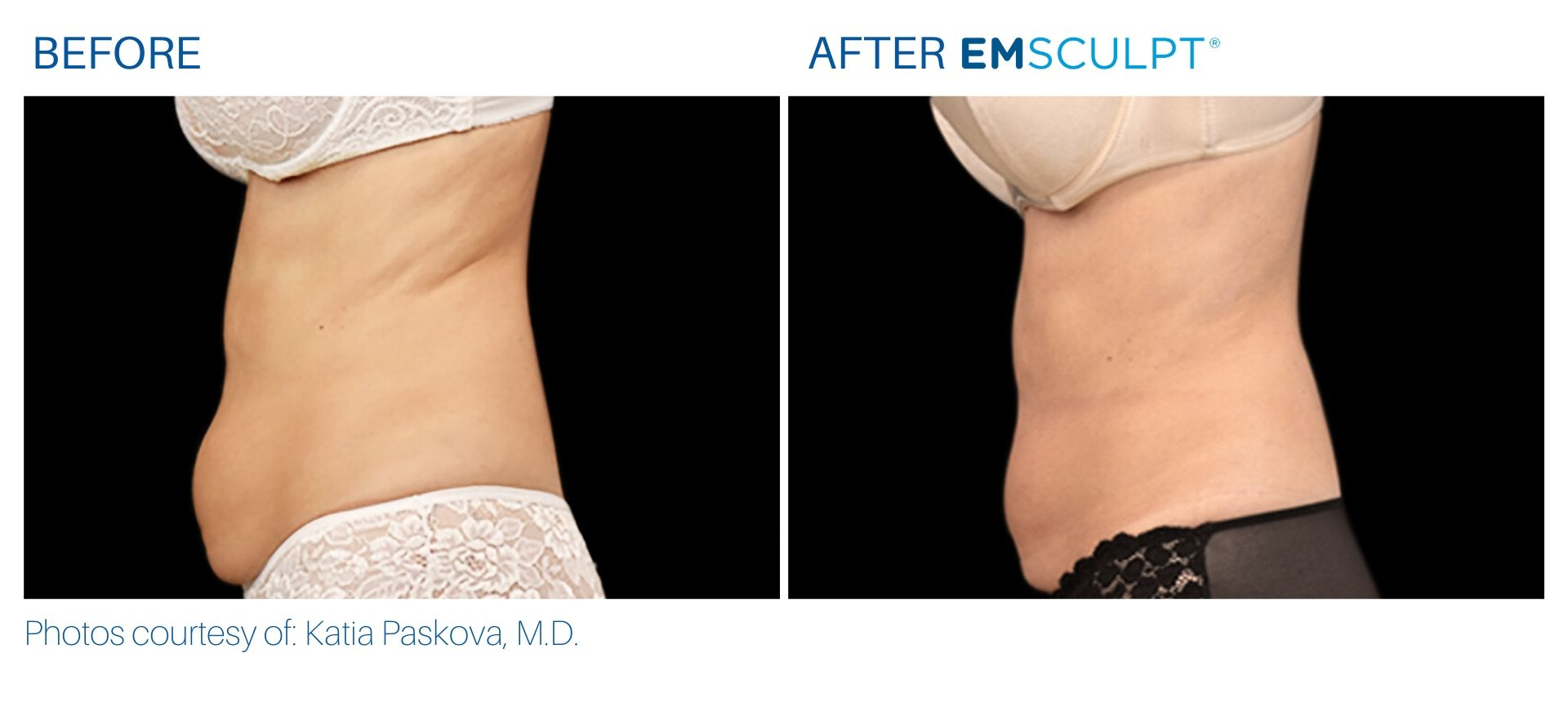 Emsculpt Before and After Aura Dermatology, NJ