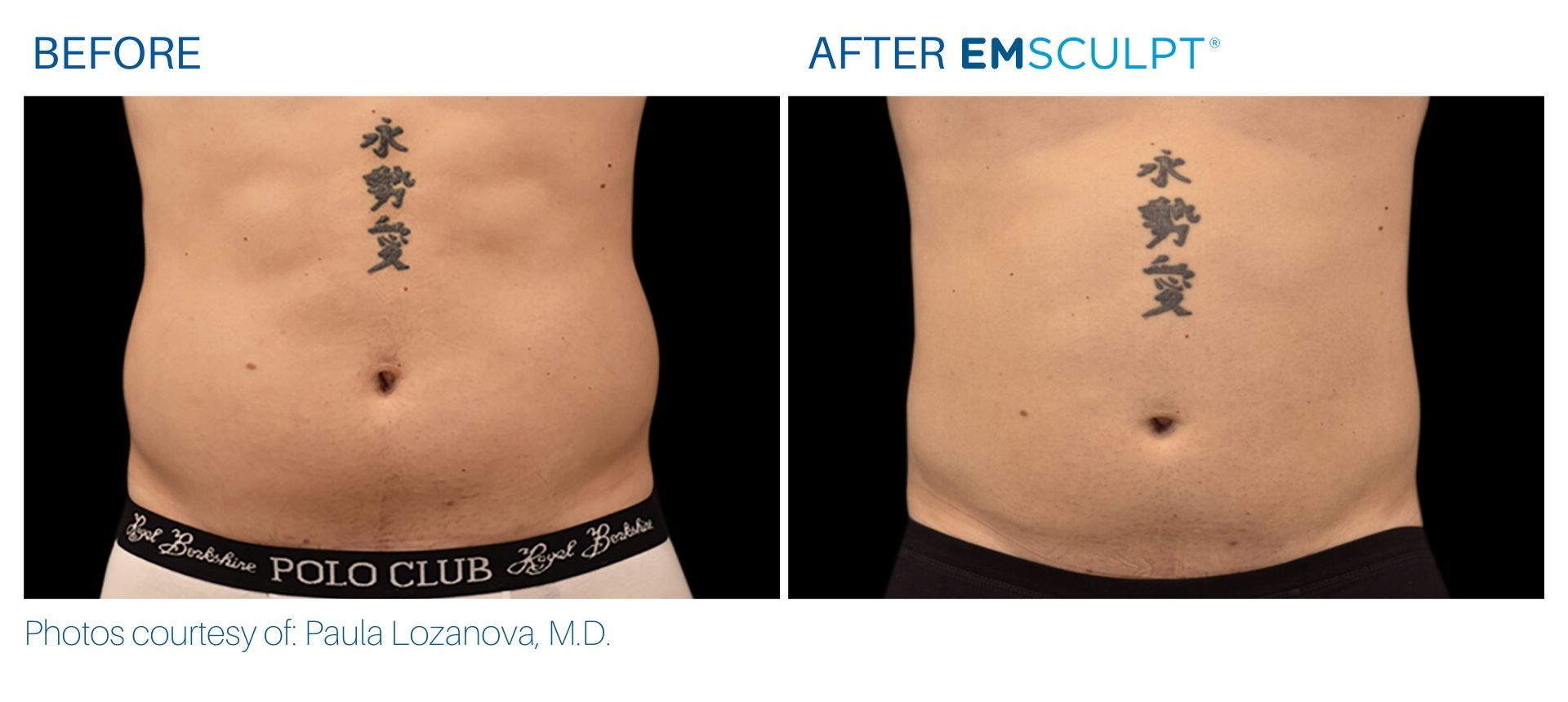 Emsculpt Before and After result Aura Dermatology Robbinsville, NJ