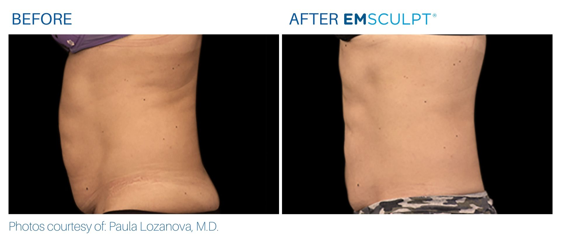 Emsculpt Before and After photos Aura Dermatology at Robbinsville, NJ