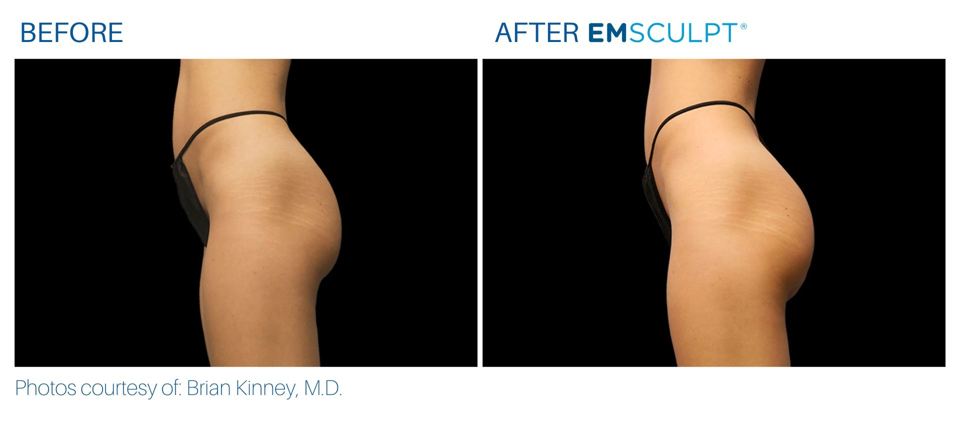 Emsculpt Before and After photos Aura Dermatology at Somerset, NJ